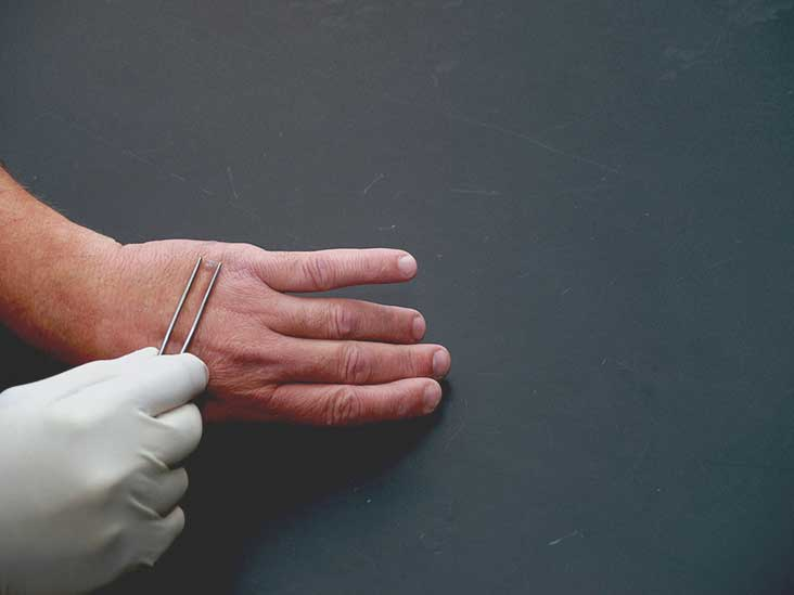 warts on hands pregnancy)