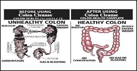 Remedii naturiste pentru detoxifierea colonului