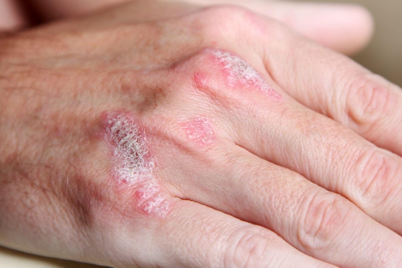 Cancer de piele la batrani
