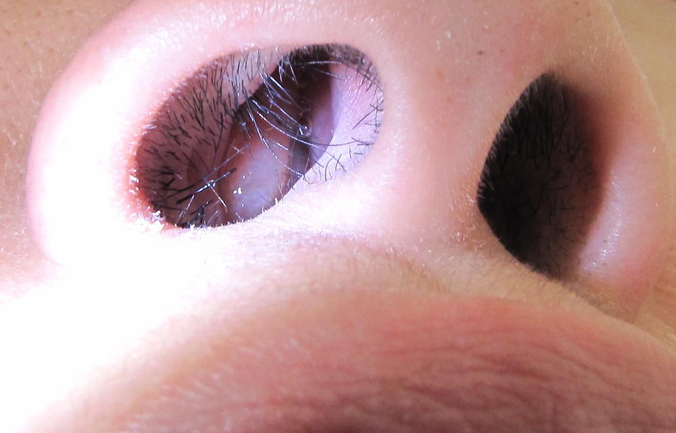 papilloma nasal icd 10)