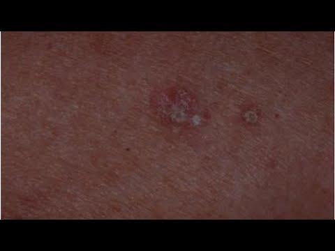 herpes virusi qartulad
