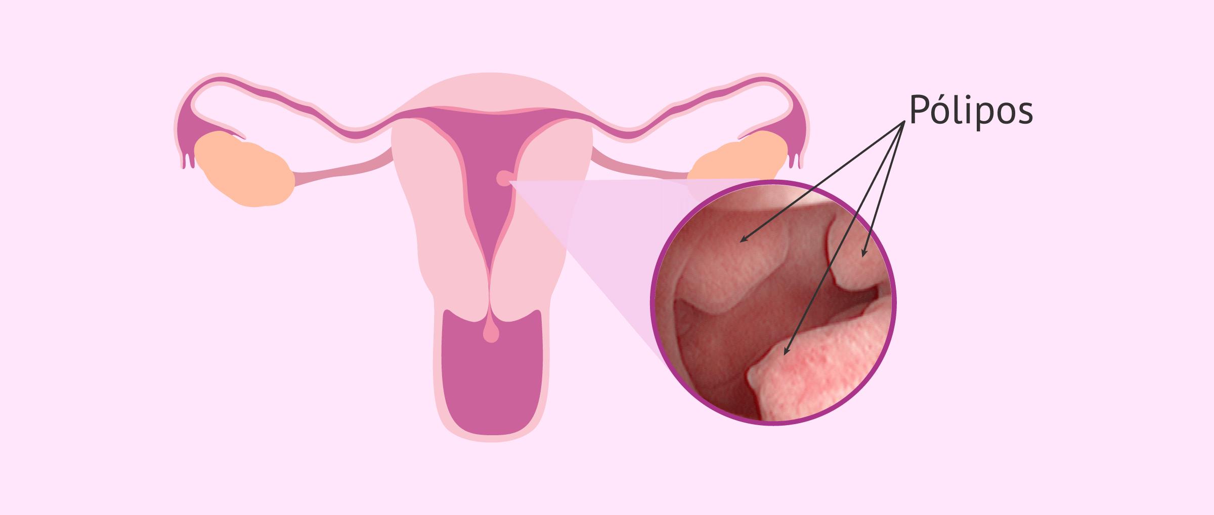 Cancer endometrial mujer joven, Vrei Sa Fi Milionar Joc En Romana Descargar » punctultau.ro