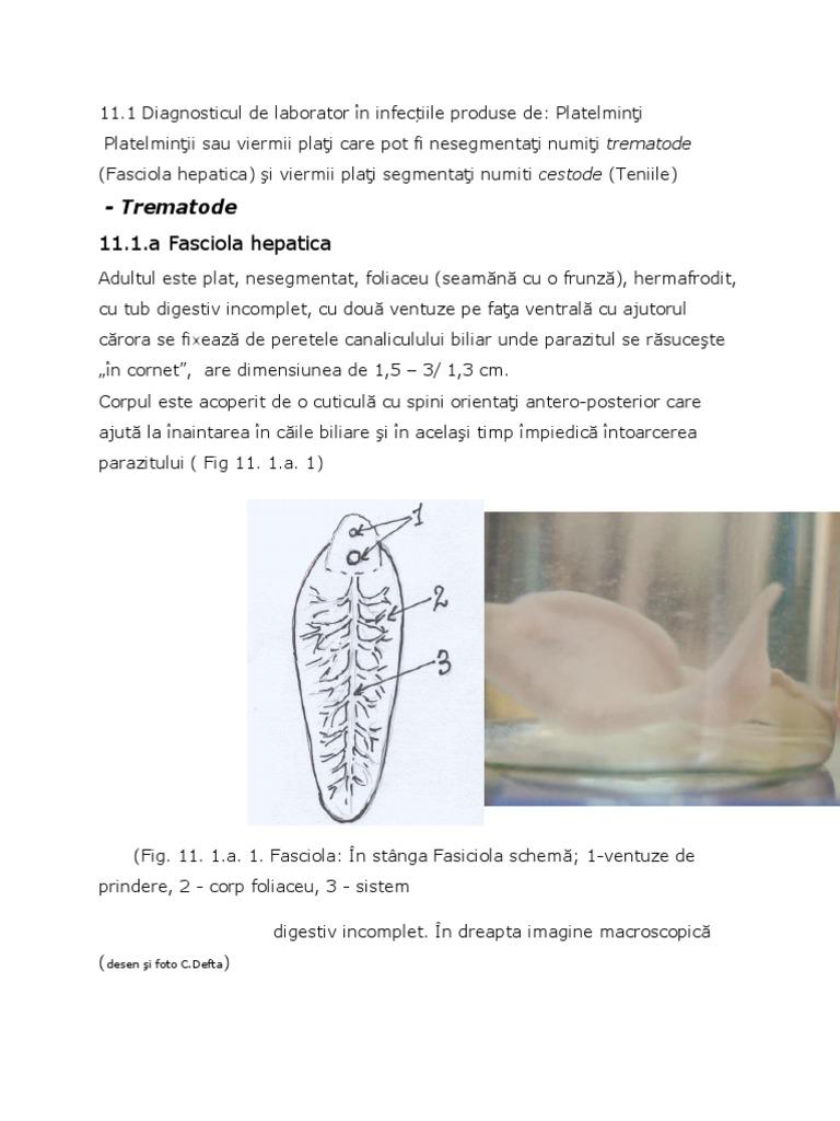 Viermii intestinali la copil - ce trebuie să știm