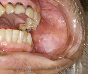 uvula papilloma icd 10