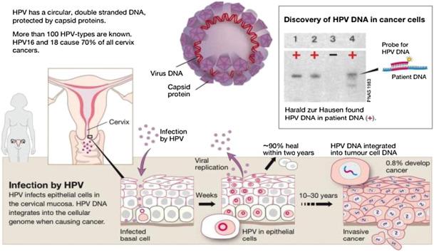 papillomavirus frottis tous les 6 mois cancer limfatic hodgkin