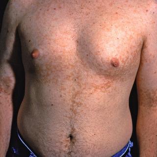 papillomatosis skin rash exemple de paraziți opționali