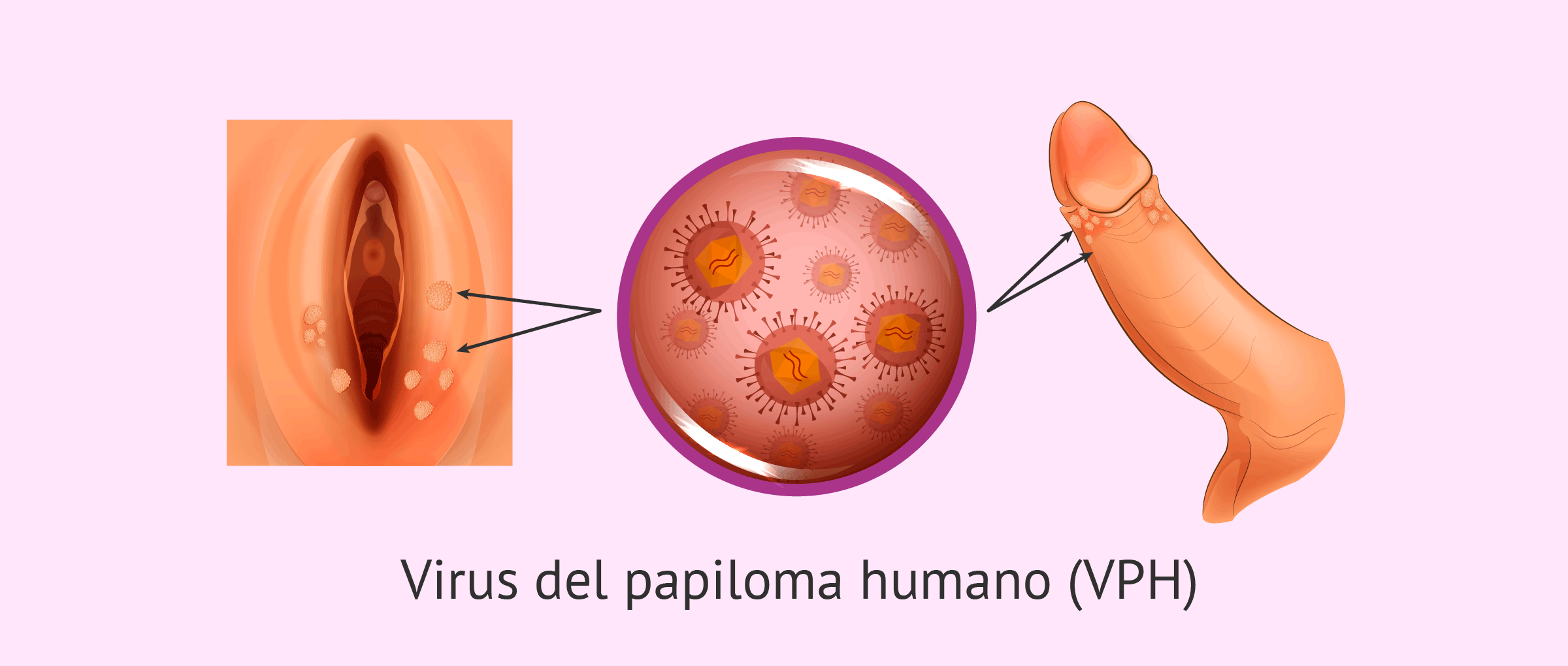 virus del hpv que es)