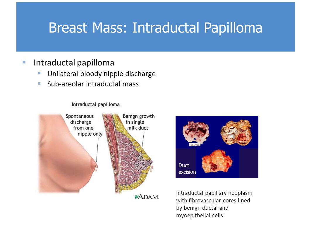whats ductal papilloma