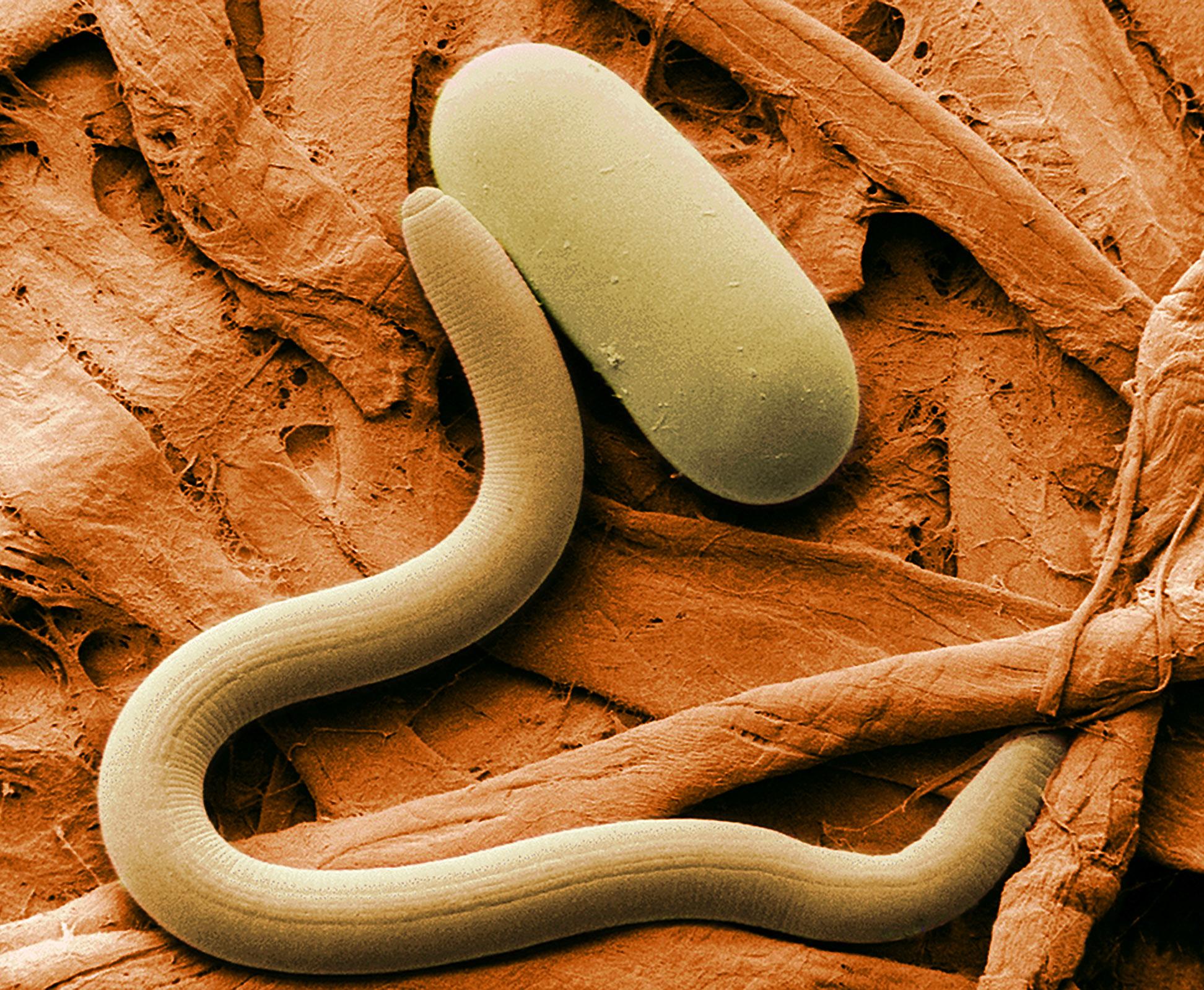 Pengertiai filum aschelminthes. Hpv szemolcs leszedese