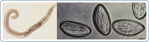 enterobius vermicularis oxiuri))