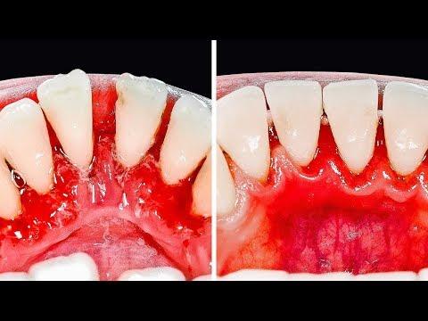 tratamentul dentar al paraziților