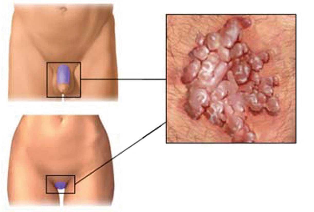 papilloma virus come si manifesta nell uomo)