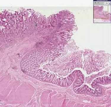 rectal cancer histopathology)