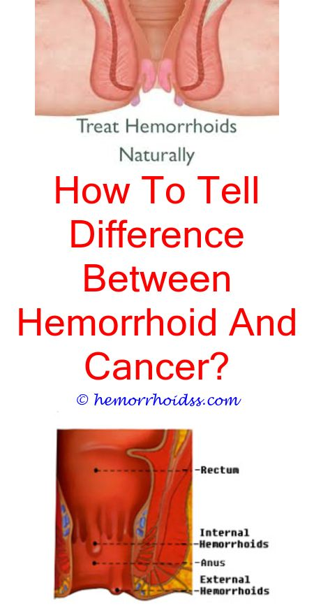 rectal cancer or hemorrhoid