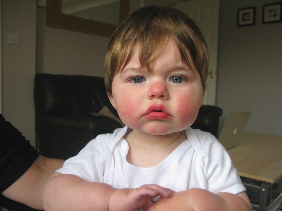 hpv skin rash on face)