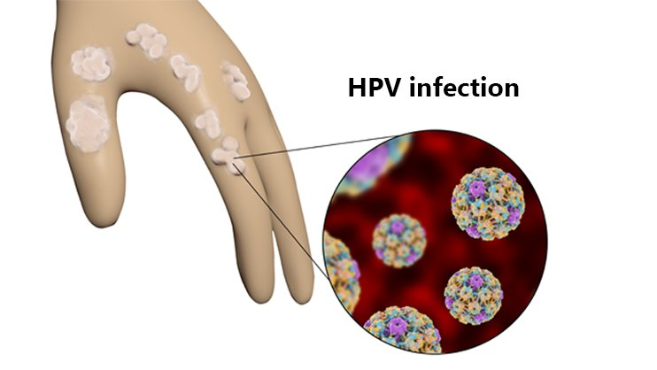 Hpv treatment topical