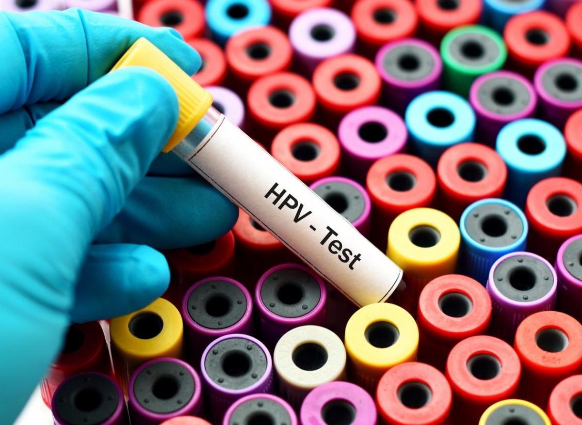frottis virus papillomavirus
