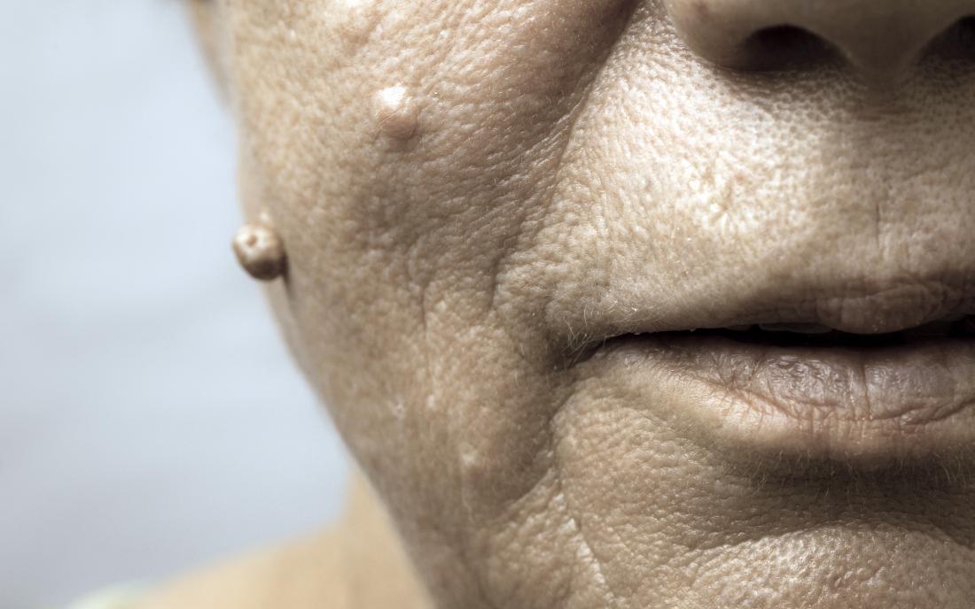human papillomavirus in face)