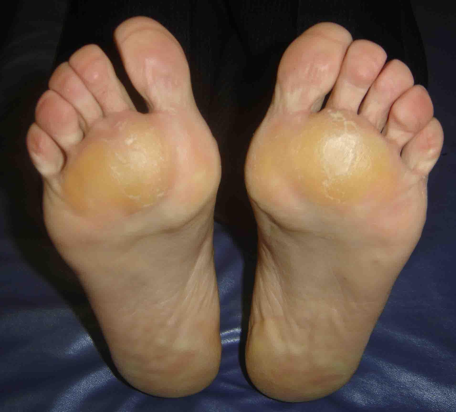 picior dureros între degete ce să faci