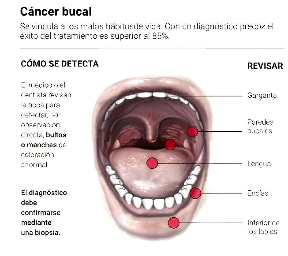 cancer bucal como detectarlo)
