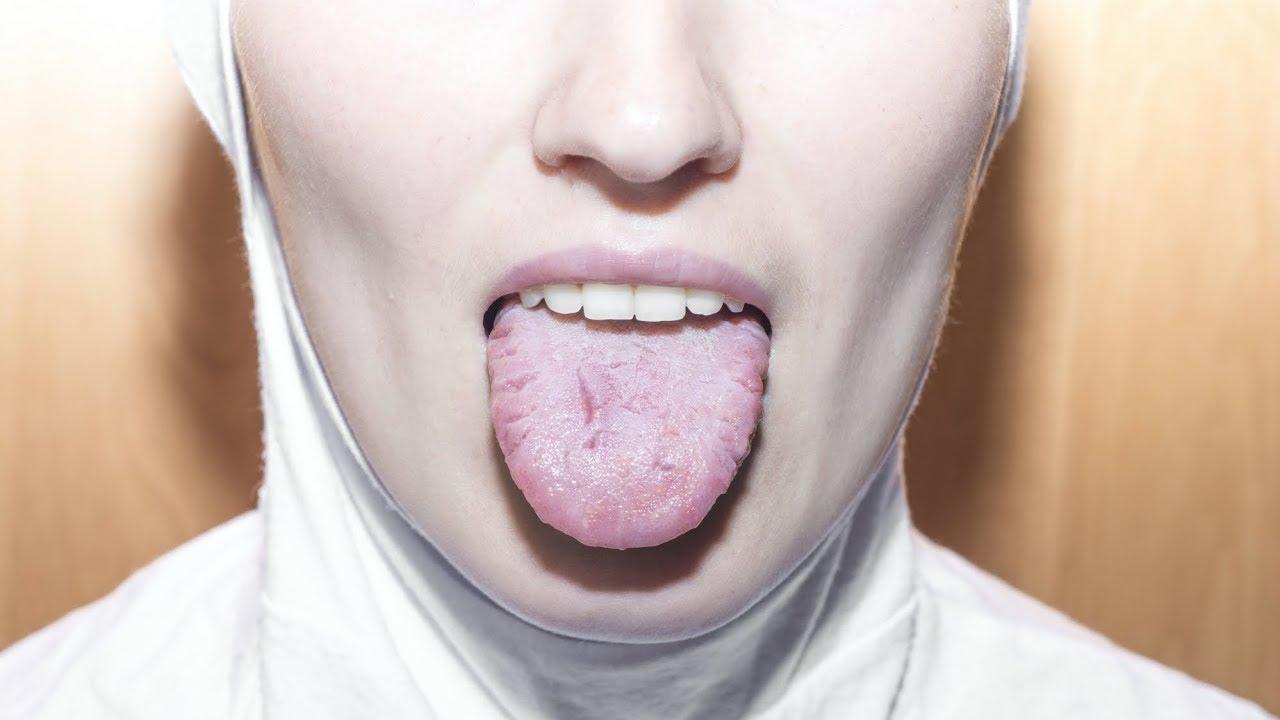 paraziți în tratamentul nazofaringelui