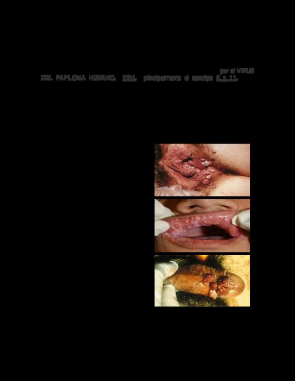virus papiloma y condilomas