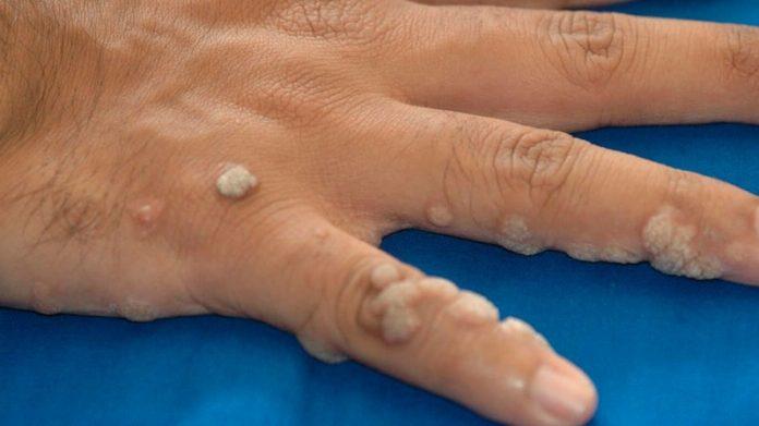 papilloma nedir t p condilom la o femeie din perineu