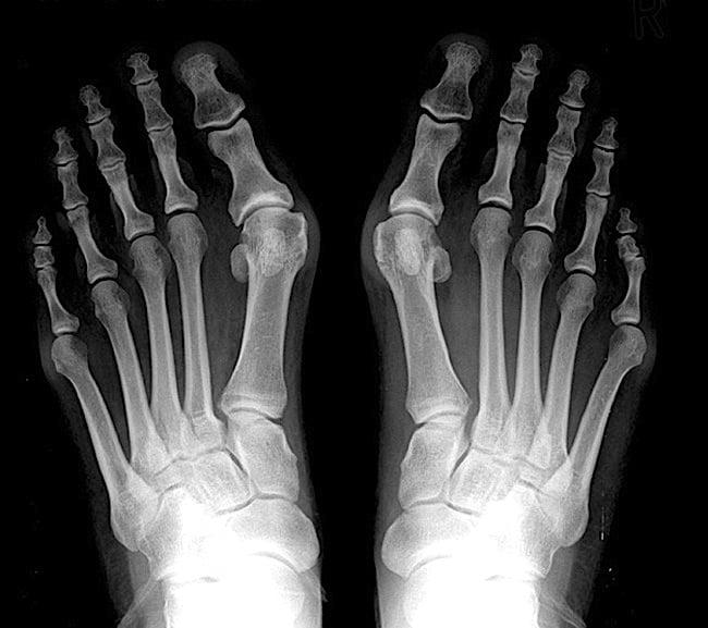 de ce se umezesc degetele de la picioare)
