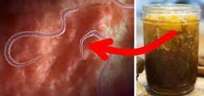 infecție pinworm)