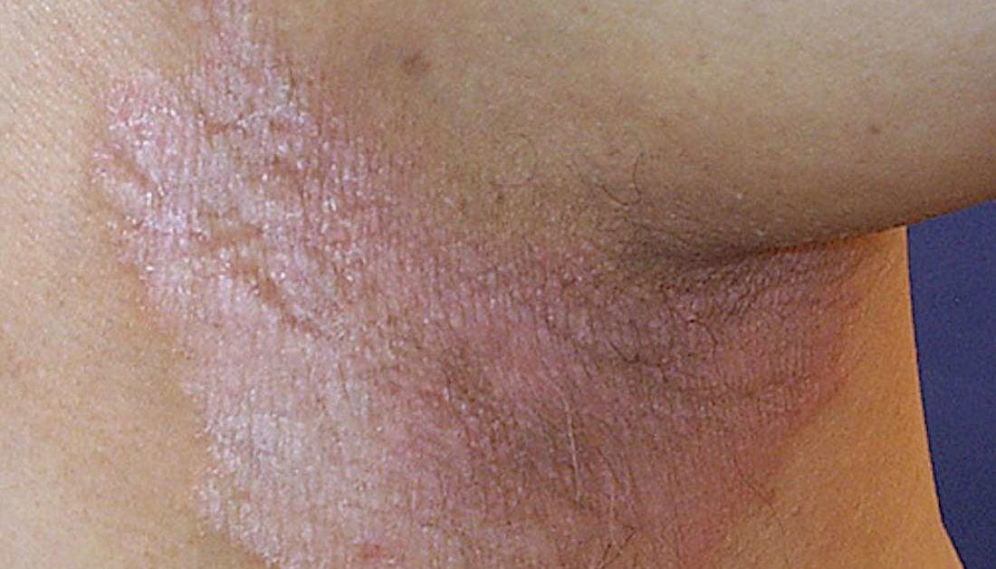 hpv genital rash)