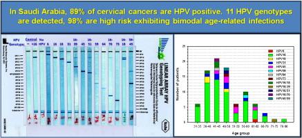 human papillomavirus genotypes)