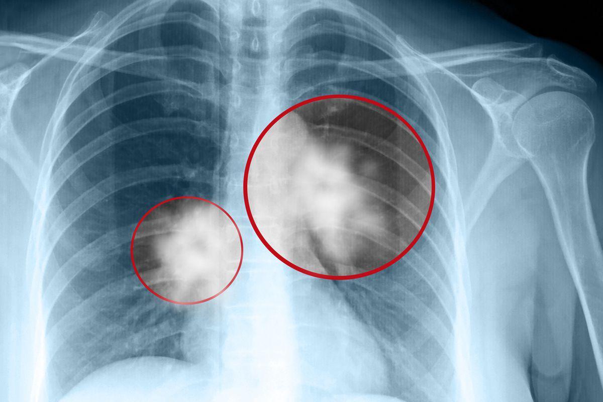 cancerul de plamani se poate vindeca lesion hpv langue