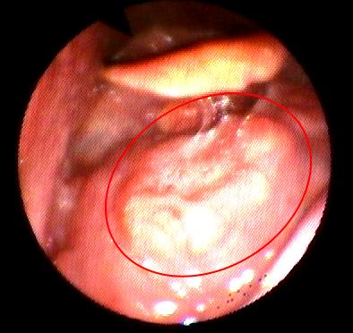 papilloma nasale sintomi