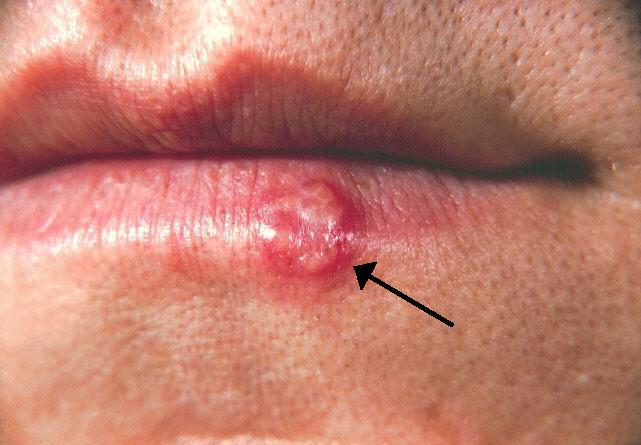 hpv mouth herpes