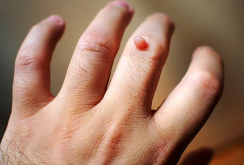 can warts on hands be painful)