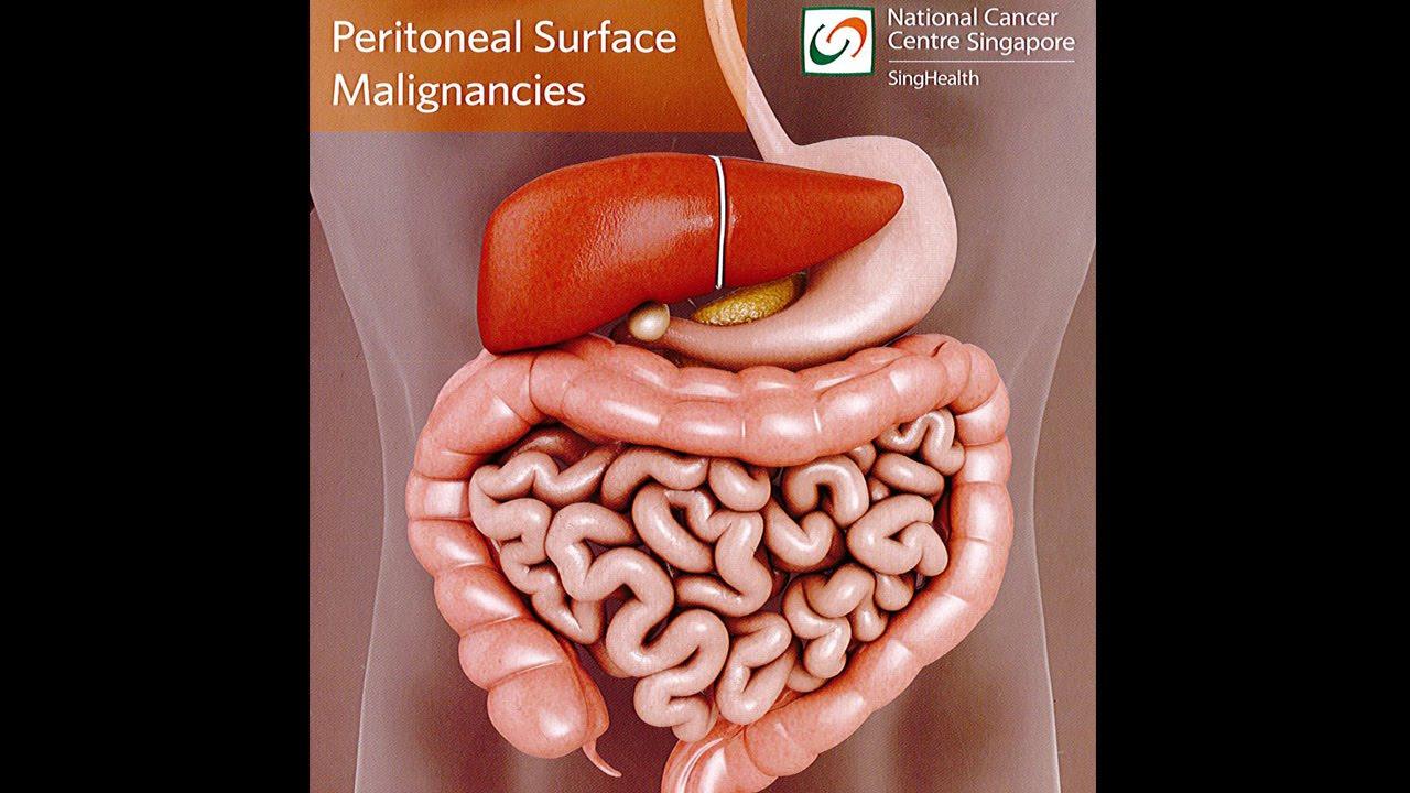 Cancer peritoneal tratamiento, Cum sa tratezi metastaze in cancerul de prostata