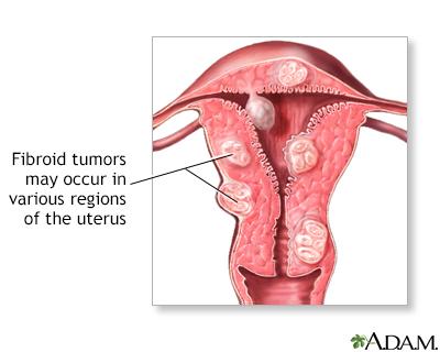 cancer abdominal mass