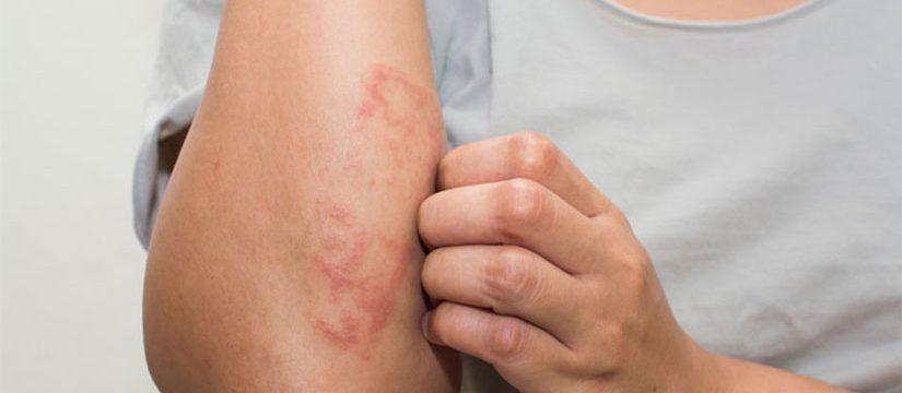 Dermatita atopică | anvelope-janteauto.ro