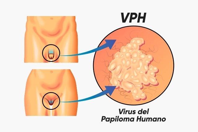 frotiu de virus papilom