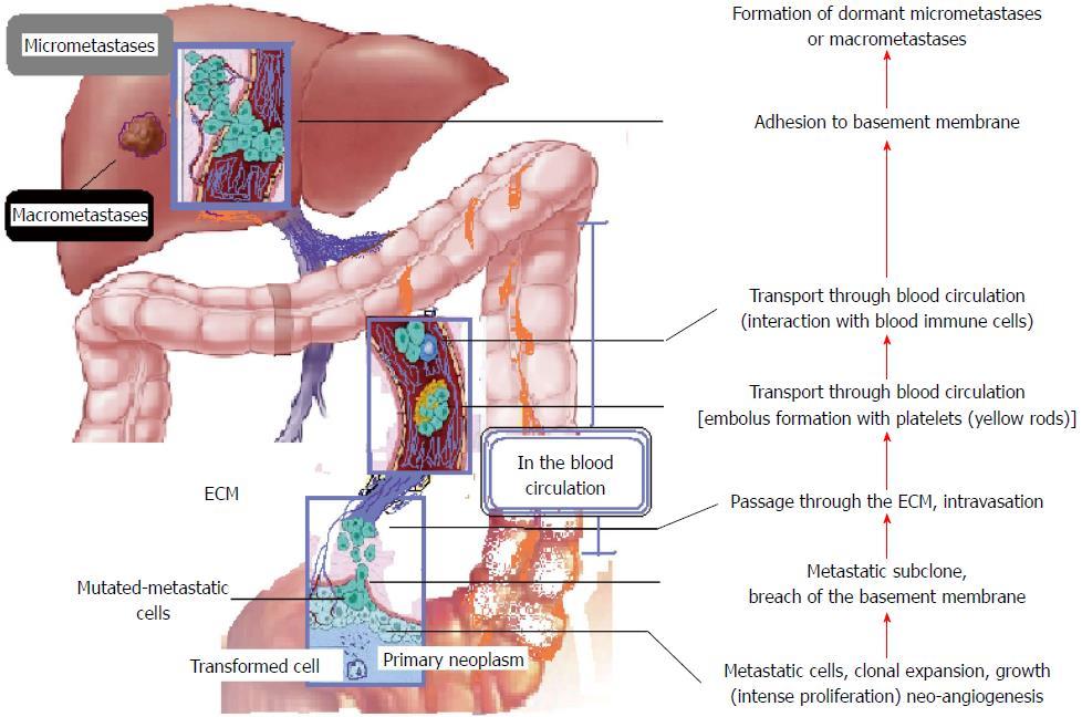 metastatic cancer colon liver