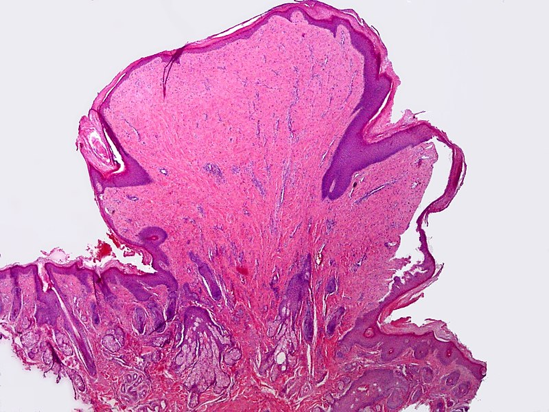 squamous papilloma uvula pathology