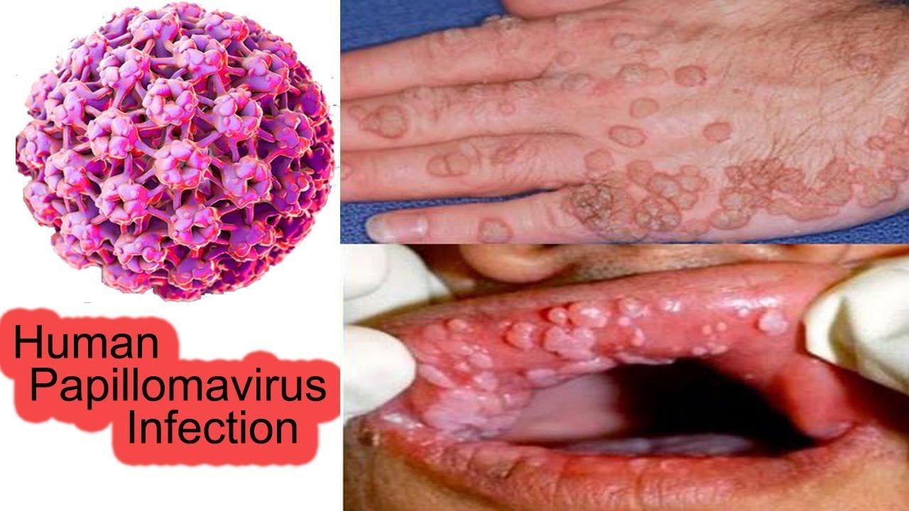 Infection papillomavirus traitement Infection papillomavirus traitement