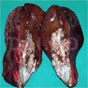 cancer ultima faza simptome)
