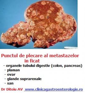 cancer hepatic metastaza)
