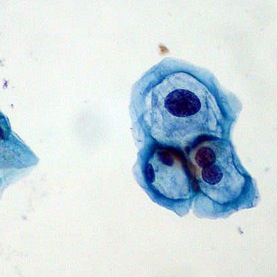 papilloma virus agente patogeno)