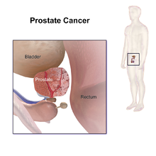 aggressive cancer meaning in telugu)