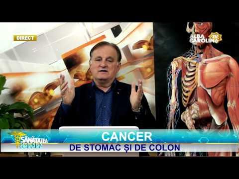 cancer de colon fara simptome)