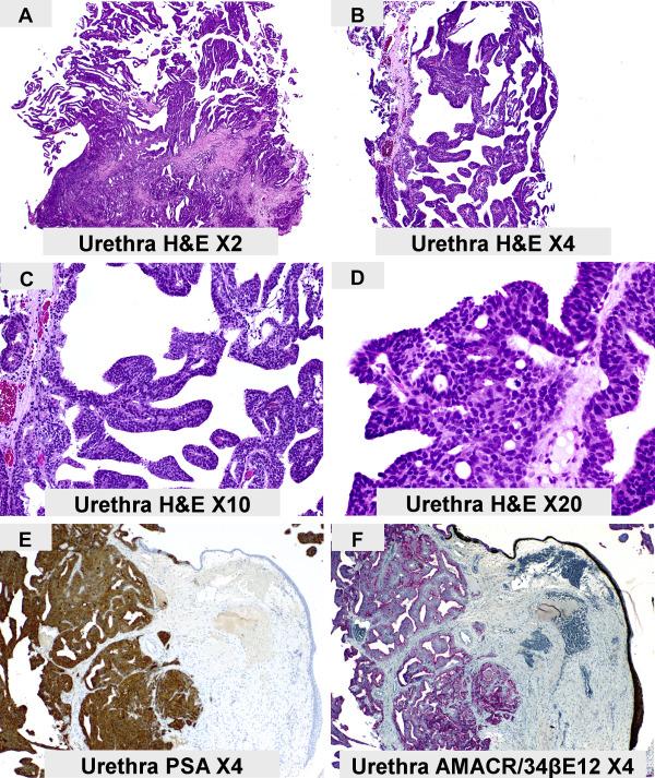 papillary lesion in prostatic urethra