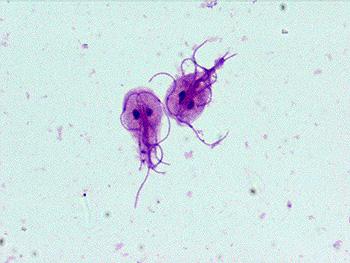 giardia patogenă)