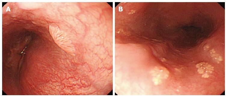 papilloma virus esophagus)